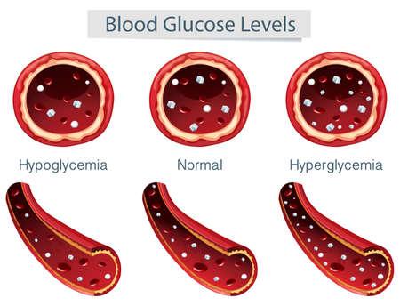3 Different Blood Glucose Levels Vector illustration. 向量圖像