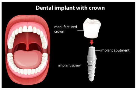Medical Vector of Dental Implant illustration