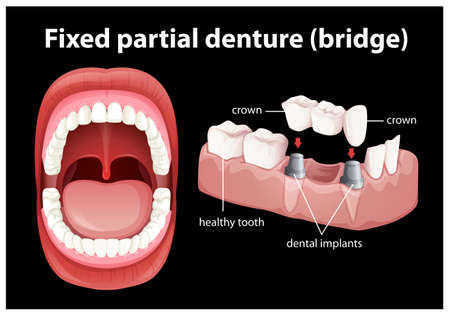 Medical Vector of Fixed Partial Denture illustration 写真素材 - 100243970