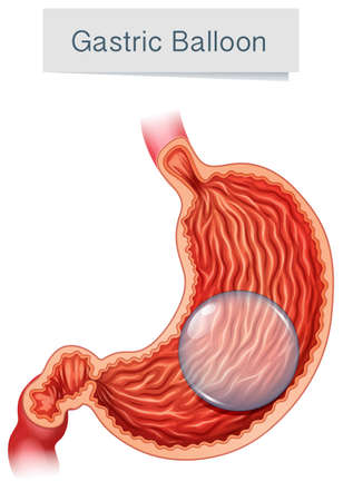 Anatomy Medical Vector Gastric Balloon illustration