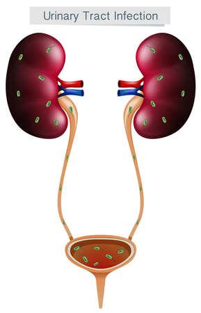 Infezione delle vie urinarie su sfondo bianco illustrazione