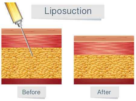 Liposuction Medical Treatment and Comparison illustration