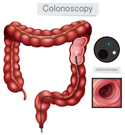 Human Anatomy Colonoscopy on White Background illustration