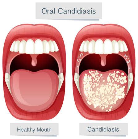 Human Mouth Anatomy Oral Candidiasis illustration Illustration