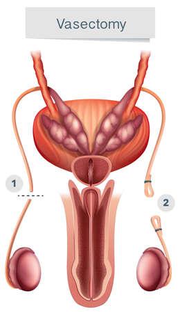 Human Anatomy of  Vasectomy on White Background illustration