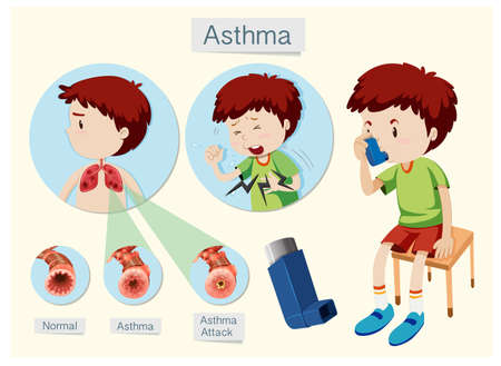 A Human Anatomy and Health Asthma illustration