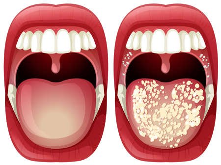 Vector of Healthy and Virus Mouth illustration