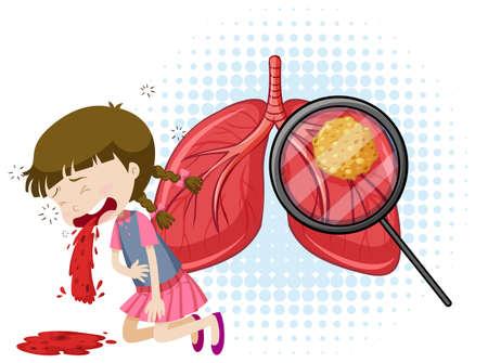 Una ilustración de Vector de tuberculosis Ilustración de vector