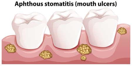 Human Anatomy of Aphthous Stomatitis illustration