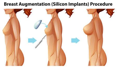 Ein Vektor der weiblichen Brustimplantatillustration Vektorgrafik