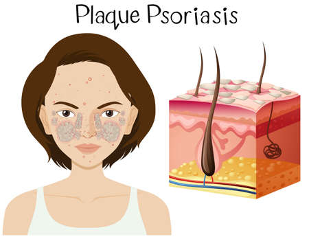 Human Anatomy of Plaque Psoriasis illustration