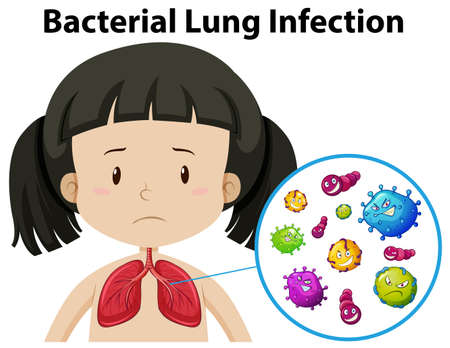 A Vector of Bacterial Lung Infection illustration