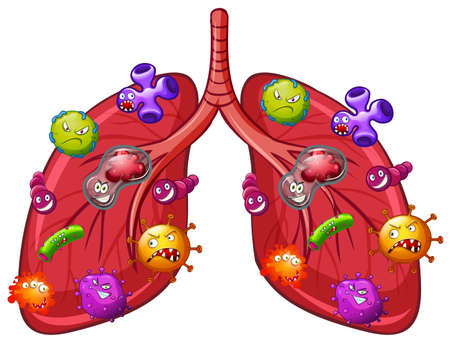 A Vector of Lung Bacteria illustration