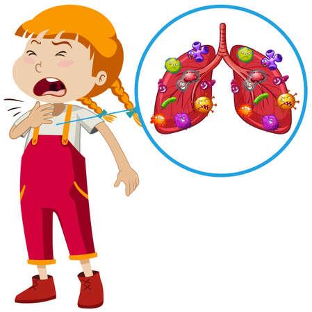 Een vector van meisje longinfectie illustratie