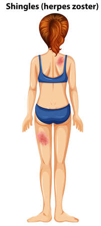 Women with shingles herpes zoster illustration