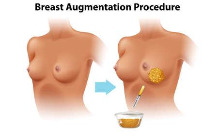 A Set of Female Breast Augmentation illustration