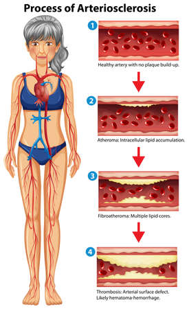 Process of arteriosclerosis medical illustration