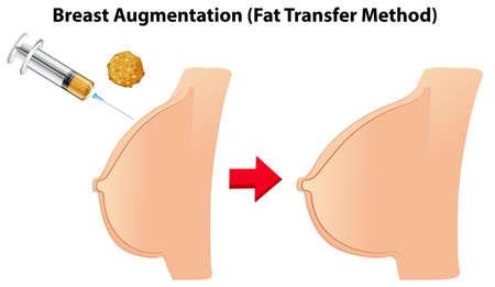 Ilustración de método de transferencia de grasa de aumento de senos