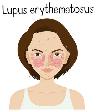 Een vector van Lupus Erythematosus-illustratie Stockfoto - 102730642