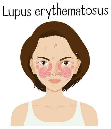 A Vector of Lupus Erythematosus illustration