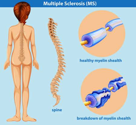 An Education Poster of Sclerosis illustration