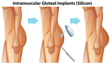 Intramuscular Gluteal Implants on White Background illustration