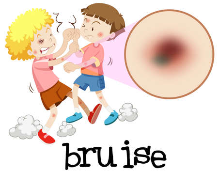 Young boys fighting with magnified bruise illustration Stock Illustratie