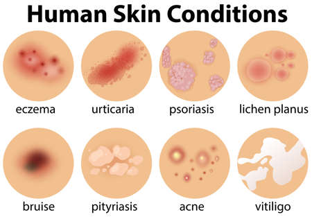 A Set of Human Skin Conditions illustration Ilustracja