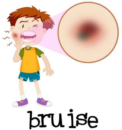 Magnified boy with bruise illustration