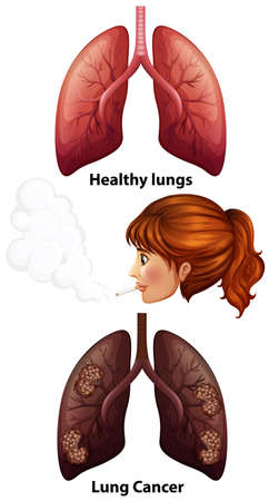 Women smoking with healthy and cancer lungs illustration