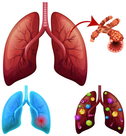 A Set of Lung Condition illustration