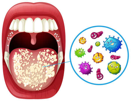 A Human Mouth Virus Infection illustration