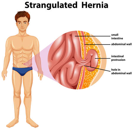 Human Anatomy of Strangulated Hernia illustration Çizim