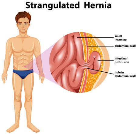 Human Anatomy of Strangulated Hernia illustration Illustration
