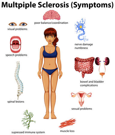 An Education Poster of Multiple Sclerosis illustration