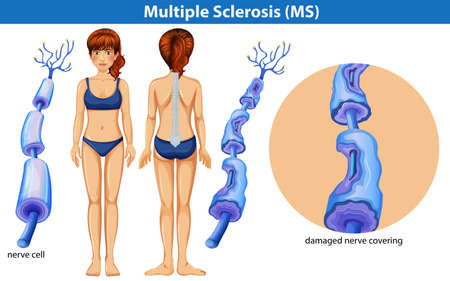 A Human Anatomy of Multiple Sclerosis illustration