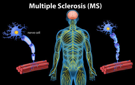 Human Anatomy of Multiple Sclerosis illustration 向量圖像