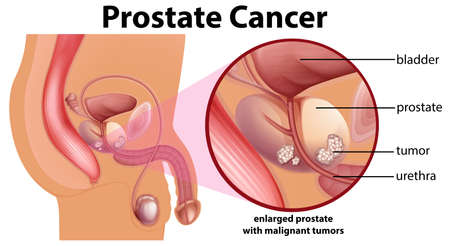 Diagram of prostate cancer illustration 矢量图像