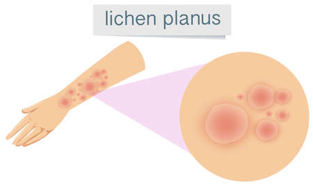 Human Skin with Lichen Planus illustration