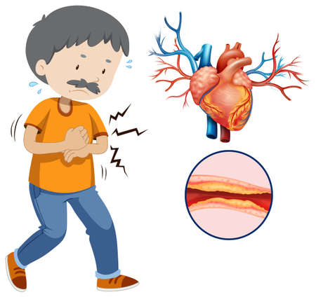 A Human Heart Problem on White Background illustration