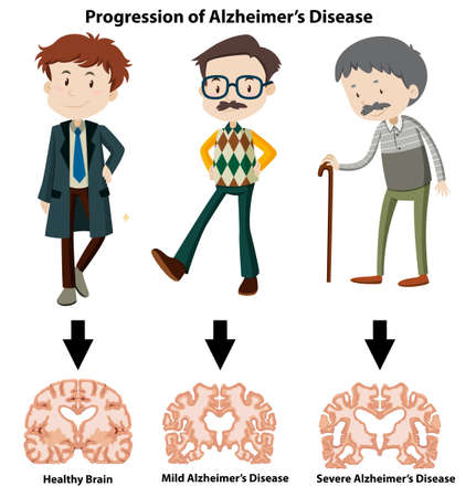 A Progression of Alzheimer's Disease illustration