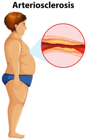 An Overweight Man with Arteriosclerosis illustration