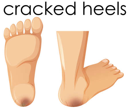 A Set of Human Foot with Cracked Heels illustration Illustration