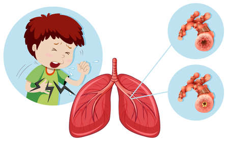 A Man Having Chronic Obstructive Pulmonary Disease illustration Illustration