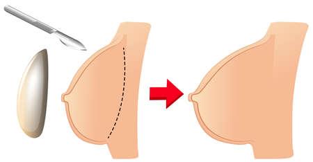 A Set of Breast Augmentation illustration