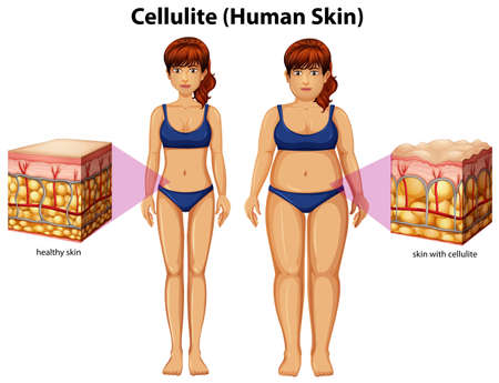 A Comparison of Women with Cellulite illustration Stockfoto - 103863670
