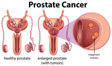 Prostate Cancer on White Background illustration