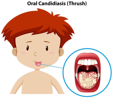 A Young Boy with Oral Candidiasis illustration