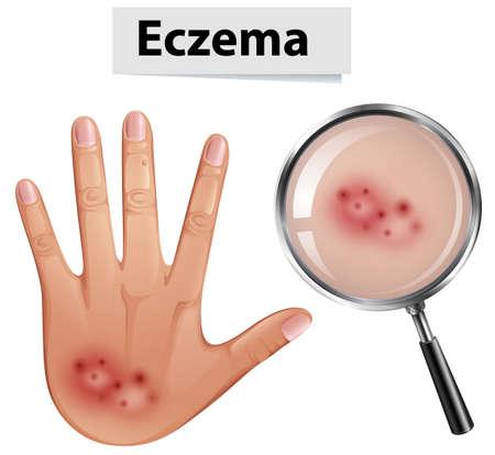 A Human Hand with Eczema illustration