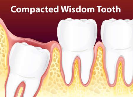 Samengeperste wijsheid tand diagram illustratie